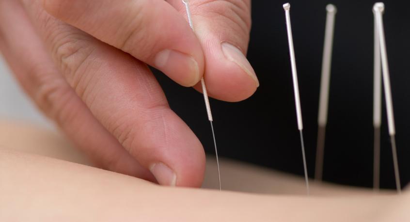 needling-dry