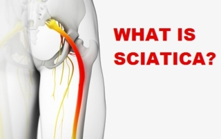 what-is-sciatica