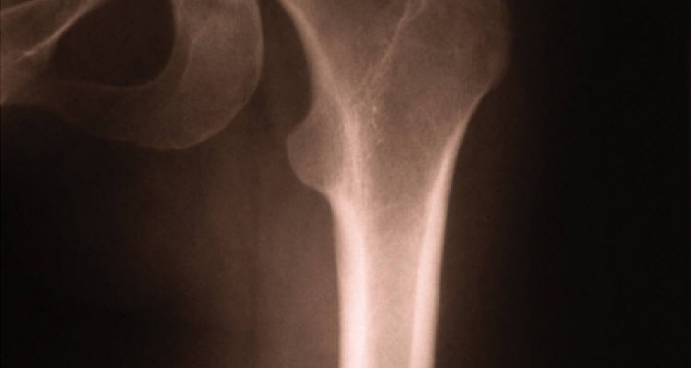 Physiotherapy after Total Hip Replacement